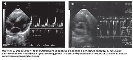 УЗИ снимки брюшной полости ребенку
